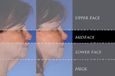 4-regions-mid-face